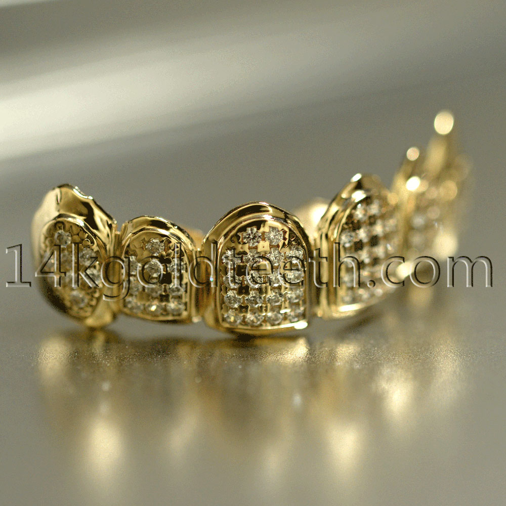 Iced Out Yellow Gold Teeth Grillz - IC 40001 - c05e0d7da