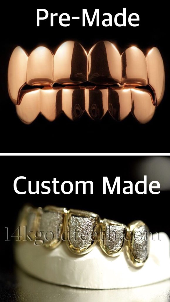 Difference between Pre-Made Grillz and Custom Grillz